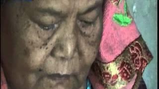 Siswa Penderita Kanker Tulang Ikut UN.