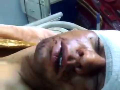 LIBYA- victims of revolution in hospital