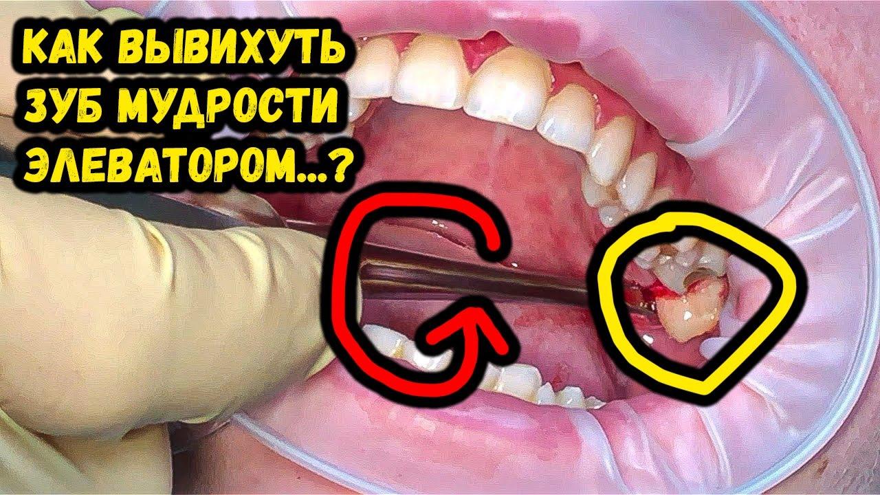Видео удаление зуба элеватором транспортные ролики для конвейеров
