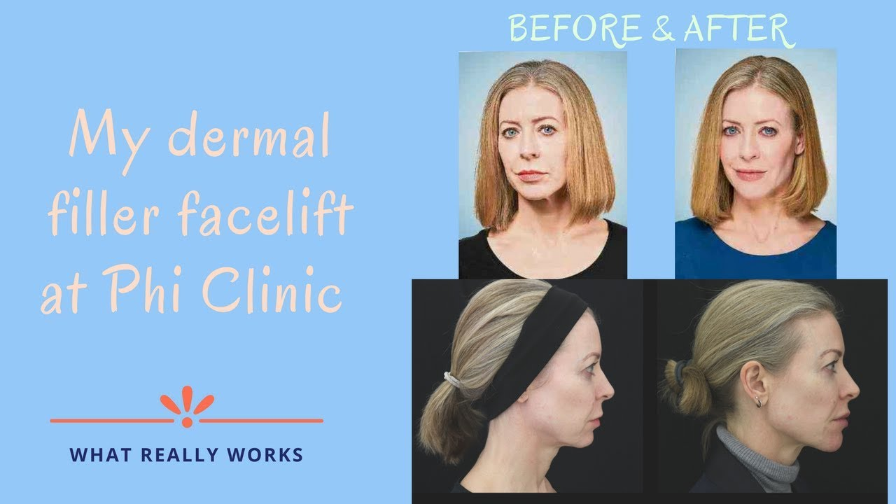 My non surgical facelift with Juvederm fillers | Alice Hart-Davis