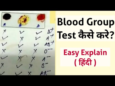 Blood Group Test At Home