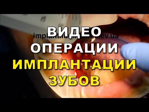 Имплантация зубов Киев ( видео )