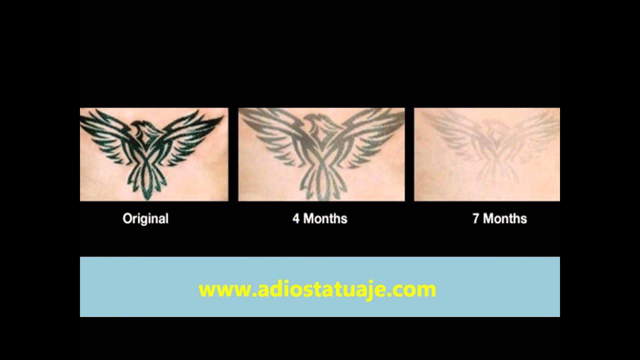 Para Quitar Tatuajes borrar un tatuaje en casa con crema - youtube