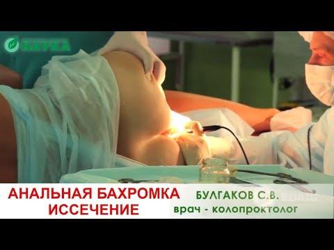 Анальная бахромка осложненная тромбозом. Как удаляют? Проктологическая операция в клинике Наука.