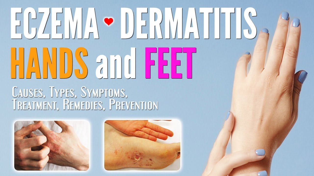 Eczema on Hands and Feet Causes, Symptoms, Types, Treatment, Remedies, Prevention | Dermatitis treat