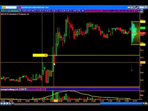 Trades review wrap up 12/2 /14 $APL, $EYES, $NUGT, $JDST and more