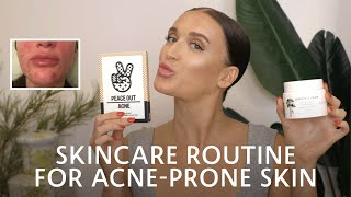 Skincare Routine for Acne-Prone Skin | Sephora