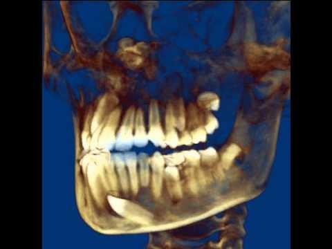 Pair Orthodontics: CBCT