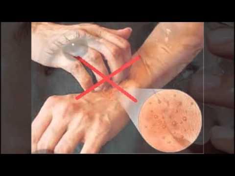 Panduan Pengobatan Penyakit Cacar Air