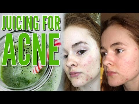 Juicing for Acne (How I Cleared my Acne in FOUR Days!) - YouTube