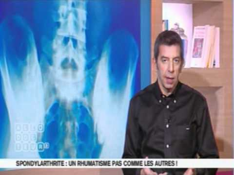 spondylarthrite battre fatigue et la fatigue