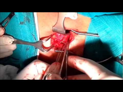 lateral femoral cutaneous nerve release - youtube, Muscles