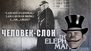 Человек-слон Обзор
