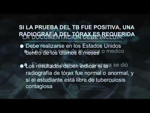 MVWSD Kindergarten Immunization Requirements - Spanish