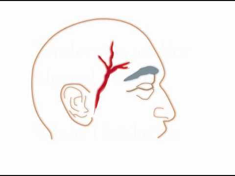 TIP 5 - Headache with tender temples
