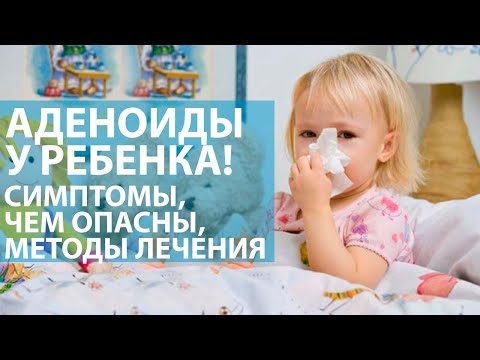Аденоиды у ребенка. Чем опасны, симптомы, методы лечения.