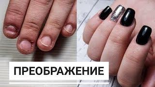 Наращивание ДЕФОРМИРОВАННЫХ ногтей/ Сложное наращивание/ ANKO NAIL