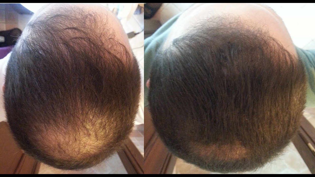 How To Reverse Hair Loss Naturally