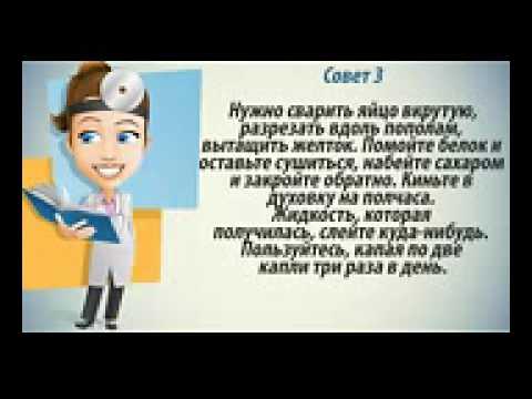 Катаракта лечение! Как лечить катаракту народными методами - YouTube