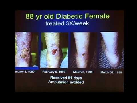 Dr Burke   December 2010 Patient Results before & after red light + near Infrared therapy
