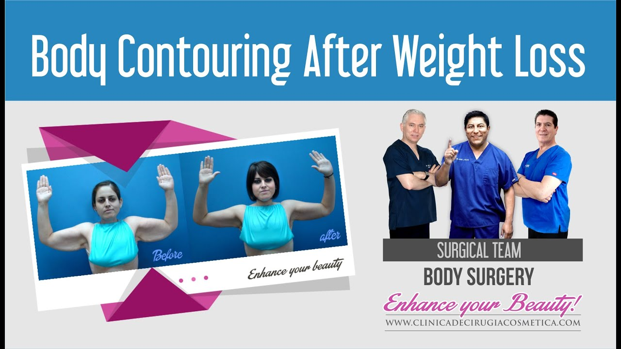 gl 30/10 weight loss for life cost