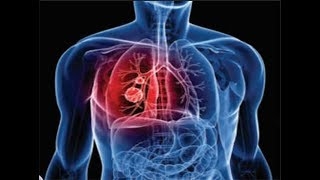 world-tuberculosis-day-observed-today-time-theme