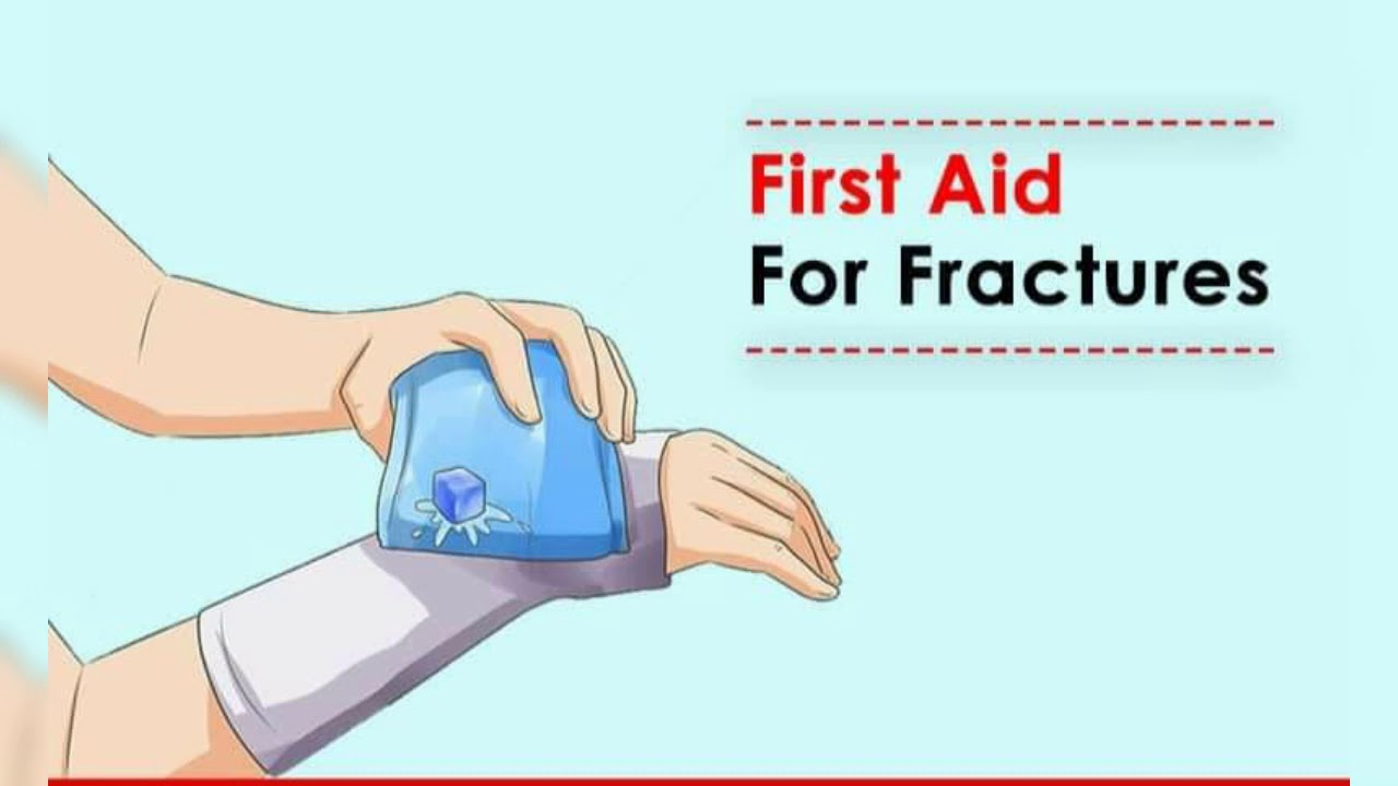 First aid for #fractures# - YouTube