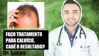 Faço tratamento para Calvície, em quanto tempo verei resultados? - Dr Lucas Fustinoni
