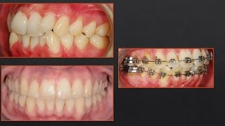 Crazy NON-Extraction Treatment...Orthodontics!!!! Severe Crowding