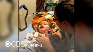 Growing measles outbreak in Washington spreading fear