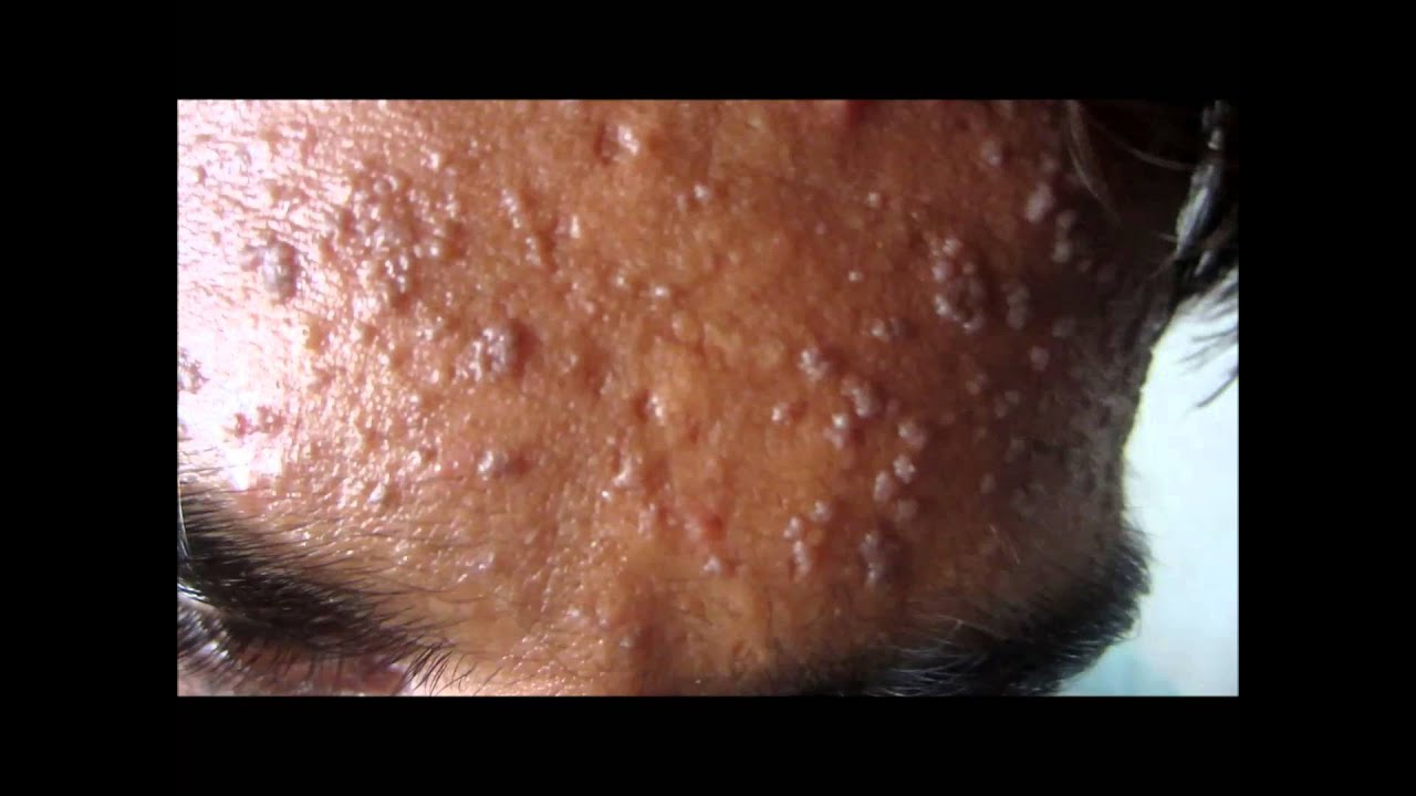 Flat Warts On Face Youtube
