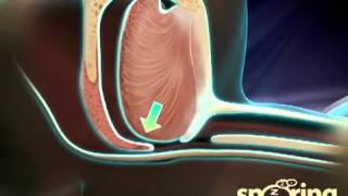 What Causes Snoring and Obstructive Sleep Apnea    YouTube copy
