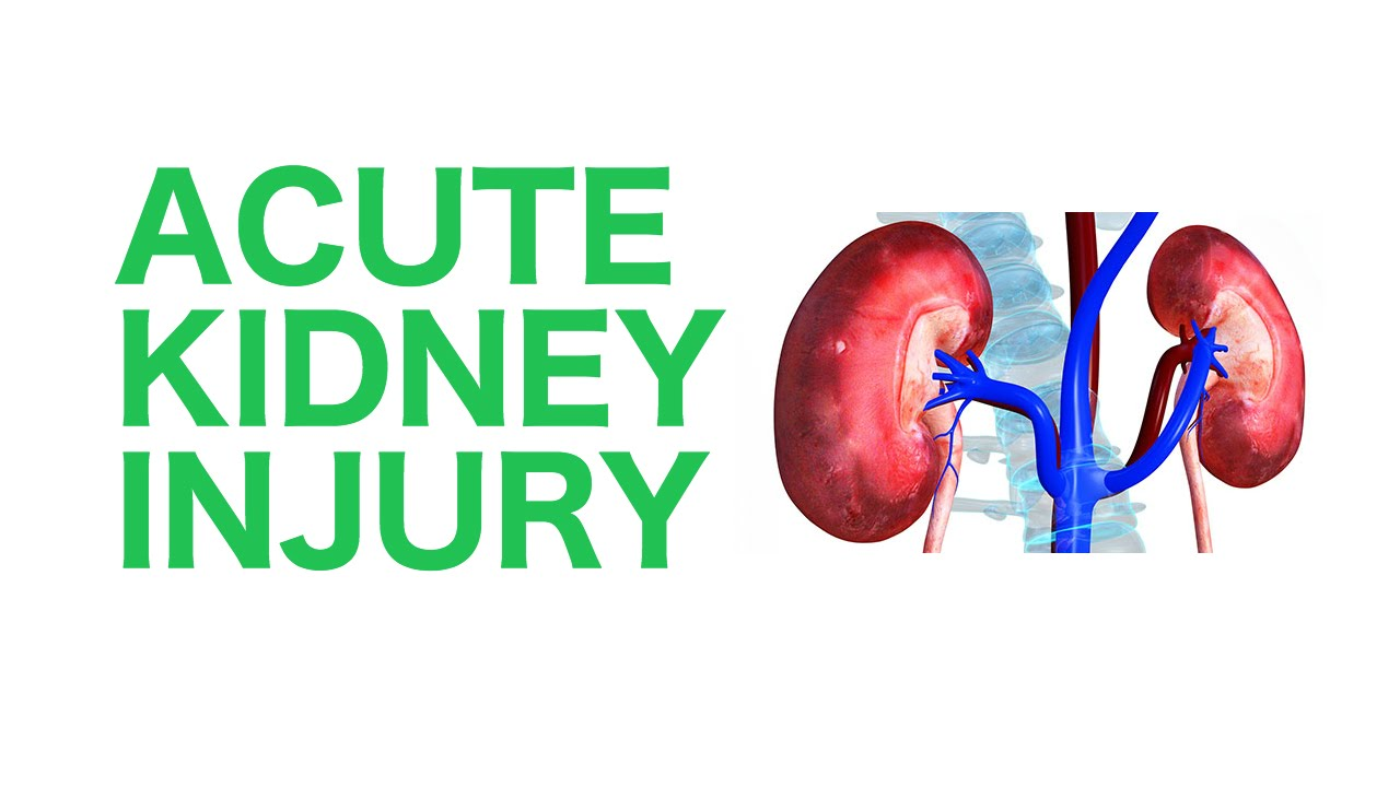 Acute Kidney Injury: A Guide to Diagnosis and Management