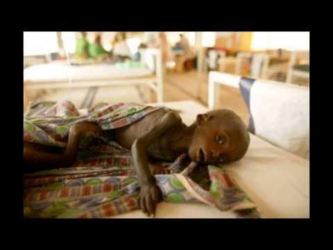 The Starving Problem: World Hunger