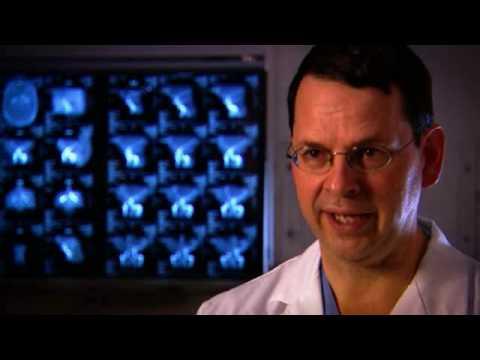 Brain Aneurysm Symptoms - Early Detection of Brain Aneurysms by The Brain Aneurysm Foundation