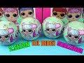 LOL Sürpriz Bebek 2 Seri 2 Dalga Challenge Altın Top İçin En Ağırını Seçtik Bidünya Oyuncak mp3
