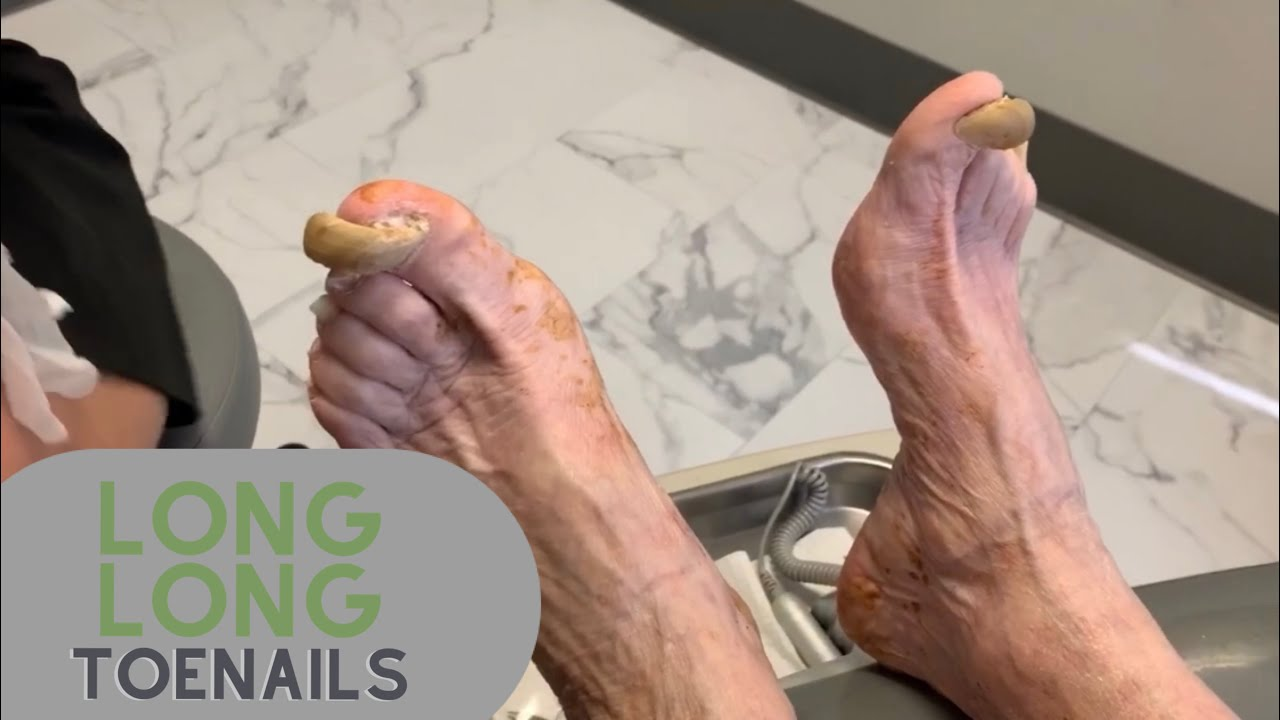 Shockingly Long Long Toenails Youtube