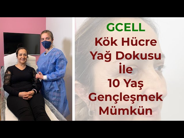 GCELL Kök Hücre Yağ Dokusu İle 10 Yaş Gençleşmek Mümkün