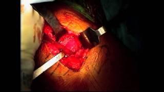 Video Total Hip Arthroplasty: Dr. Robert Shannon download MP3, 3GP, MP4, WEBM, AVI, FLV September 2017