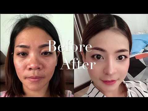 Nose Job Phuket get beauty perfect nose