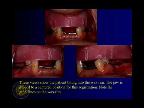 DENT 718: Combination cases: complete and partial denture sets