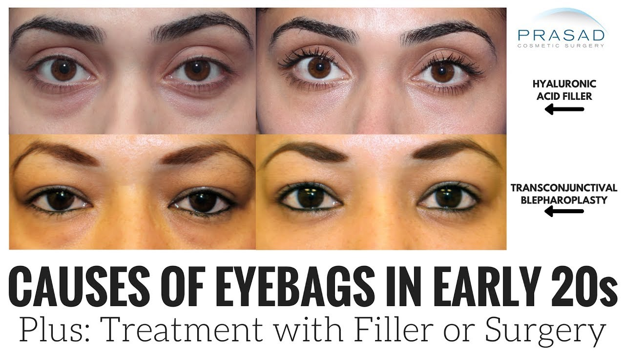 770f6b85d115 How Eye Bags can Happen in the Early 20s or Younger