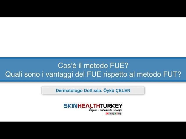 Trapianto Capelli Turchia-Cos'è il metodo FUE? Quali sono i vantaggi del FUE rispetto al metodo FUT?
