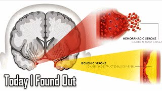 What Causes Strokes