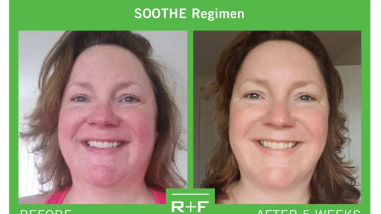Rodan And Fields Soothe Before And Afters Youtube