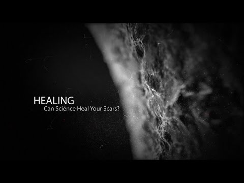 Can Science Heal Your Scars?