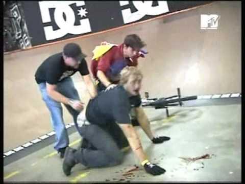 Download Scarred - #1 clip - Mesh Skatepark - Orlando, FL