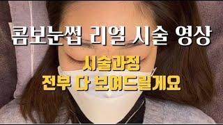 시술 ┃연예인눈썹 반영구 , 콤보눈썹 리얼 시술 영상