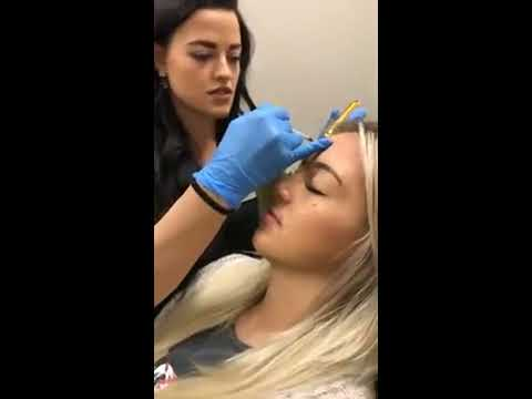 Benefits of Botox in your 20s with Shelby Miller