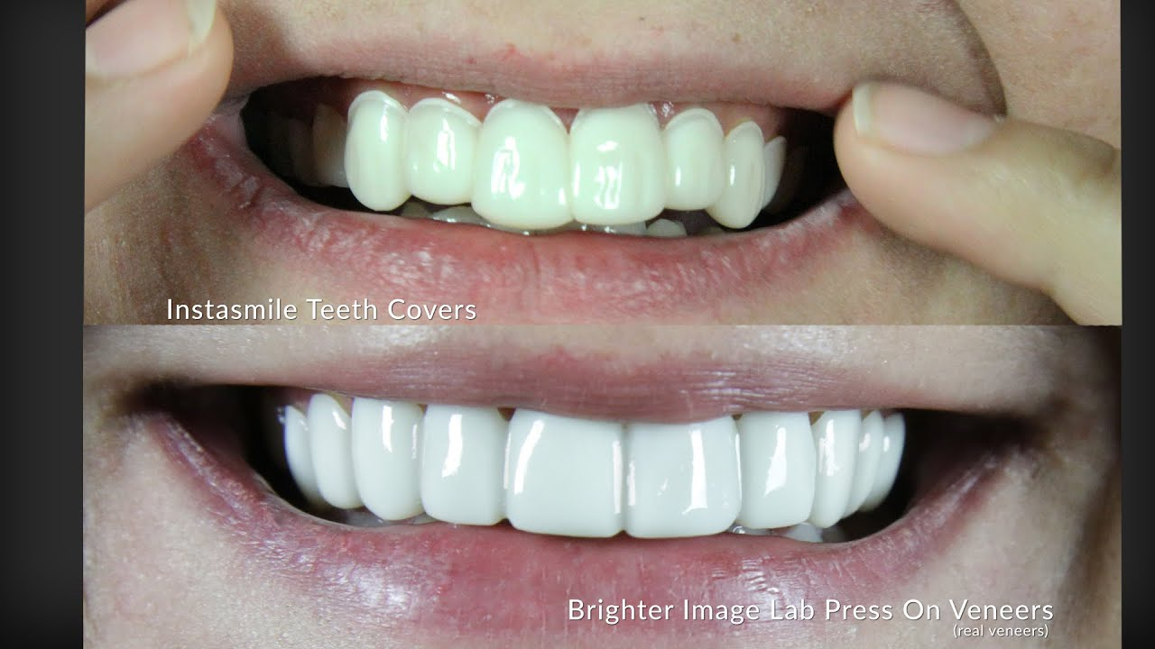 perfect smile vineer 1290 ooo topsop еспп051736